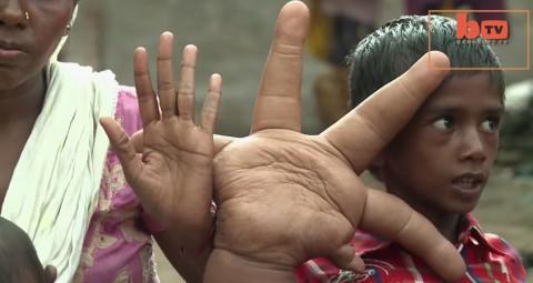 indian-boy-gigatic-hands02
