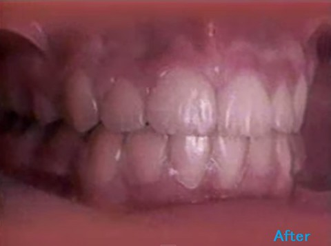 orthodontics03